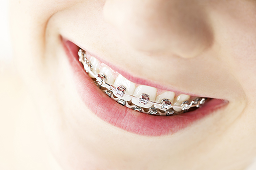 Braces in Flushing