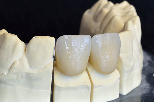 Flushing Ceramic Crowns